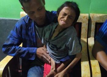Anak Mengidap Penyakit Gizi Buruk, Orang Tua Tidak Mampu Berobat
